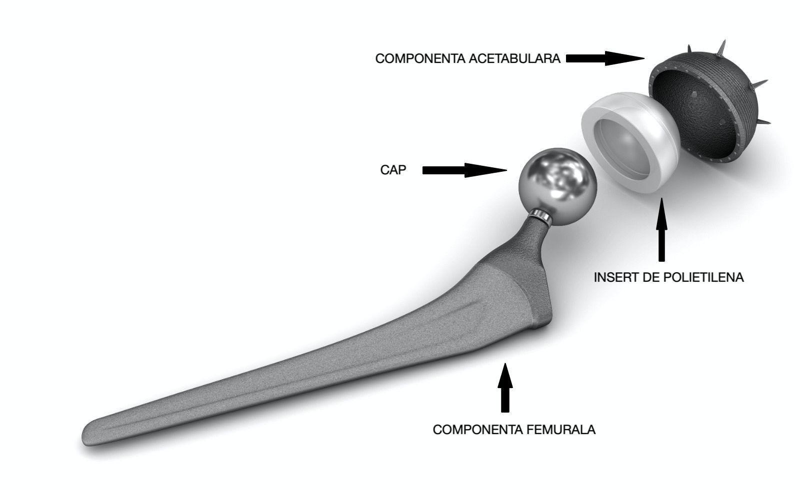 Coxartroza cu nacf