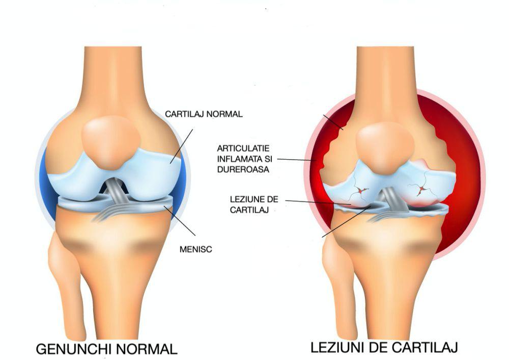 preparate pentru artroza genunchiului recenzii pentru tratamentul artrozei piciorului