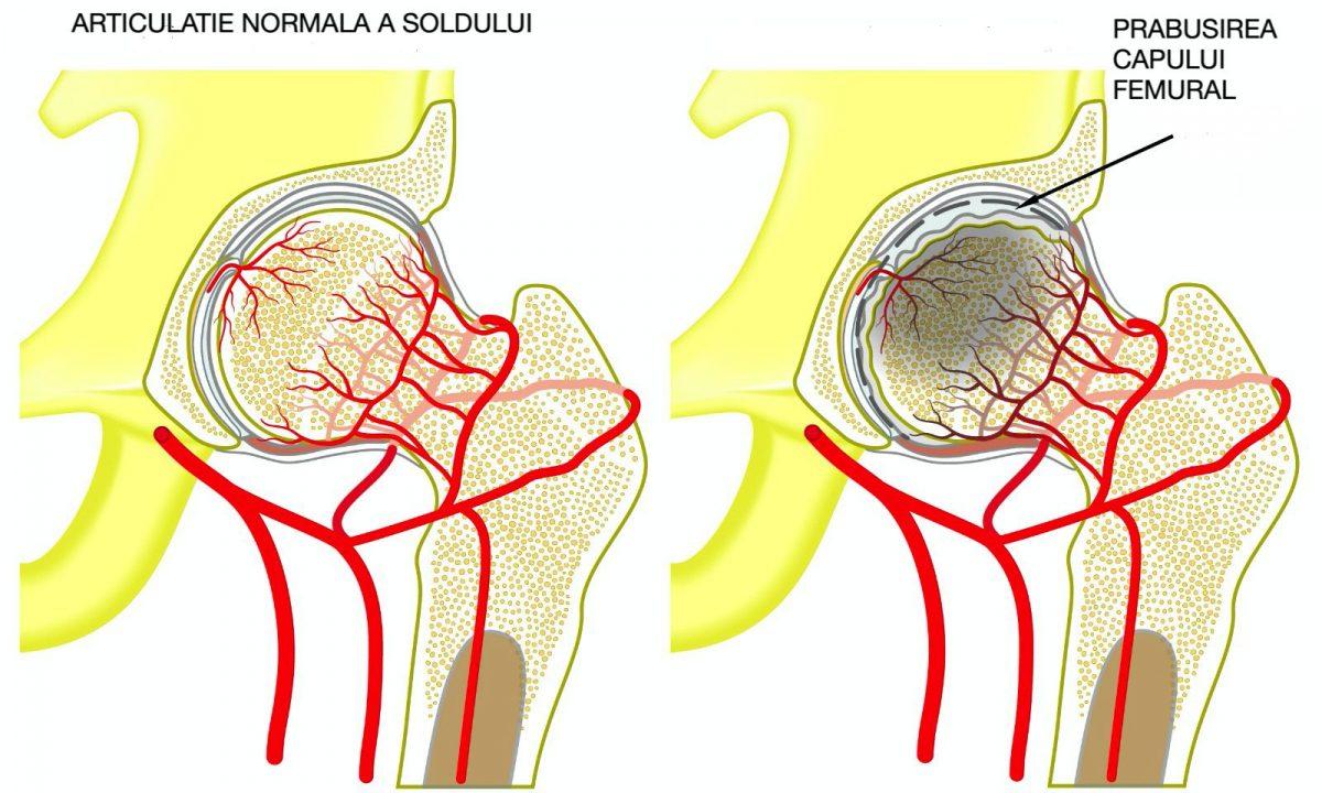 durere din necroza articulației șoldului