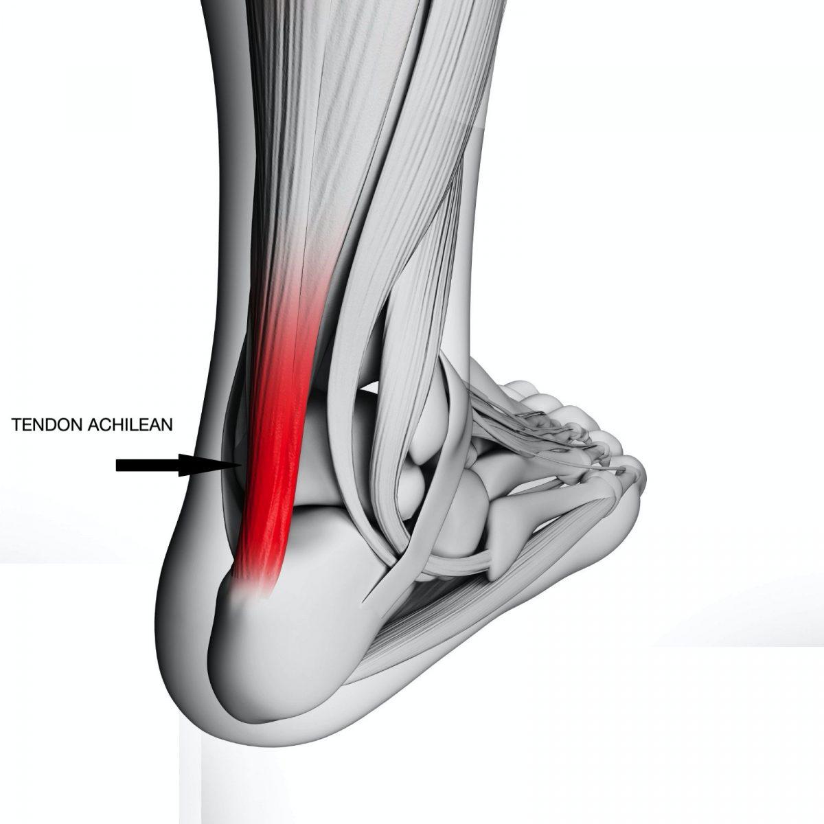 leziunea tendoanelor de șold modelarea articulațiilor de tratament