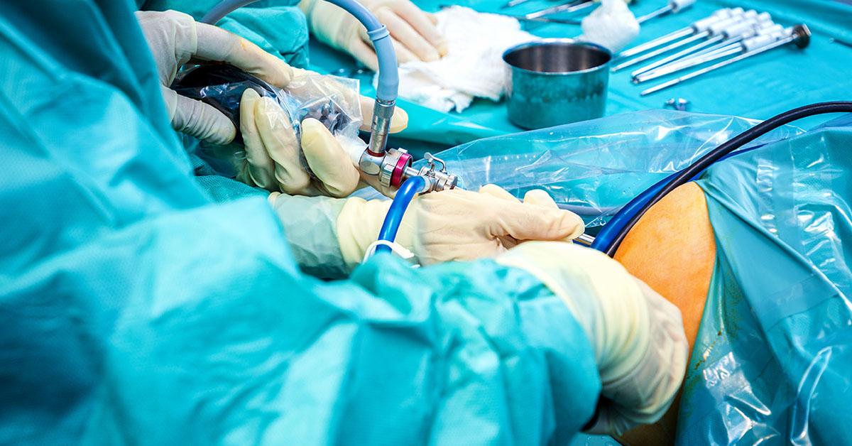 Artroscopia de genunchi – ce trebuie sa stii despre ea