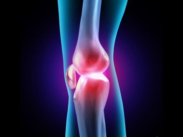 4. Luxatia de rotula – instabilitati de rotula