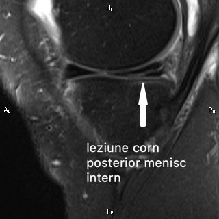 leziune-corn posterior- menisc -intern