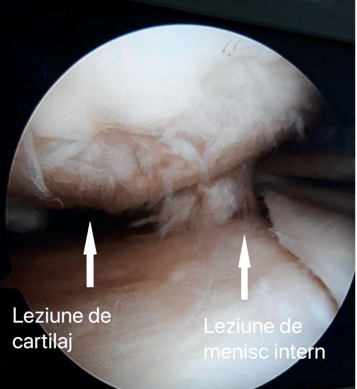 leziune-de-cartilaj-si-menisc