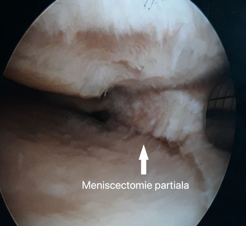 meniscectomie-partiala