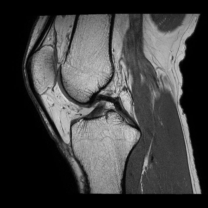 LIGAMENT-INCRUCISAT-POSTERIOR-NORMAL